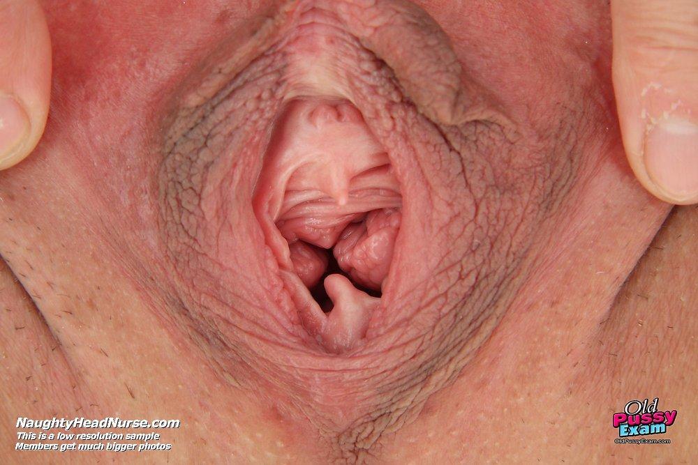 влагалище после родов фото